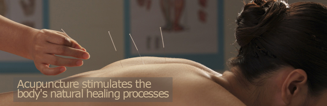 Acupuncture stimulates the body's natural healing processes